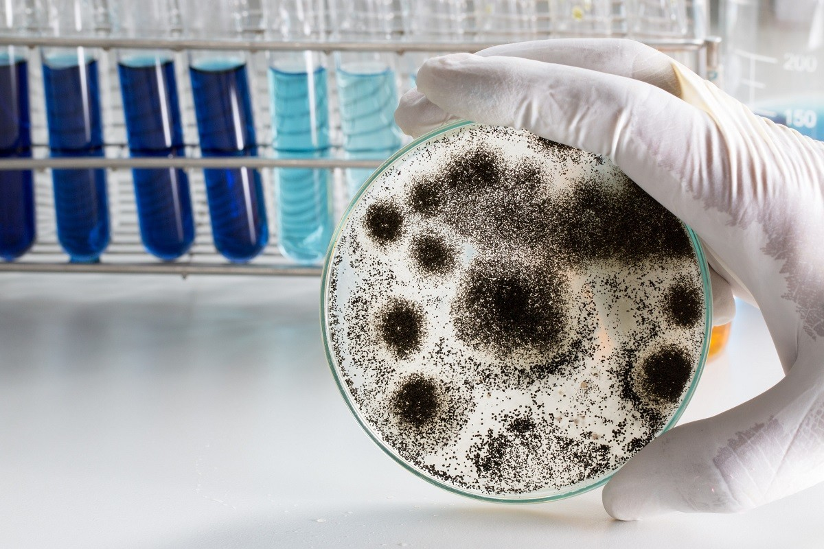 Выявляется уровень содержания микроорганизмов фото